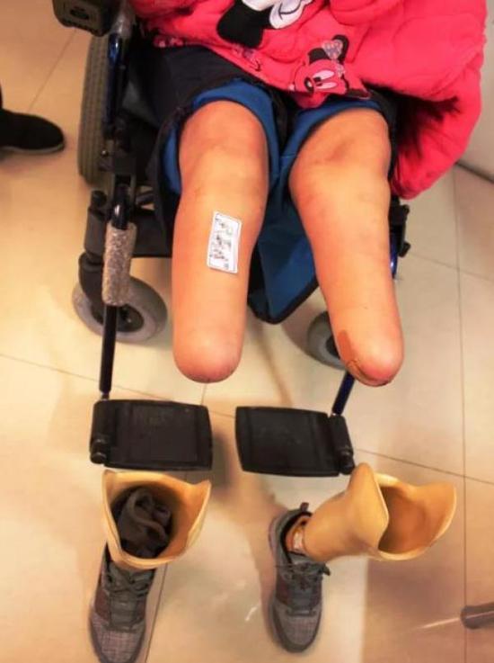 高二女生被强奸后遭二次抛弃 双目失明双腿截肢
